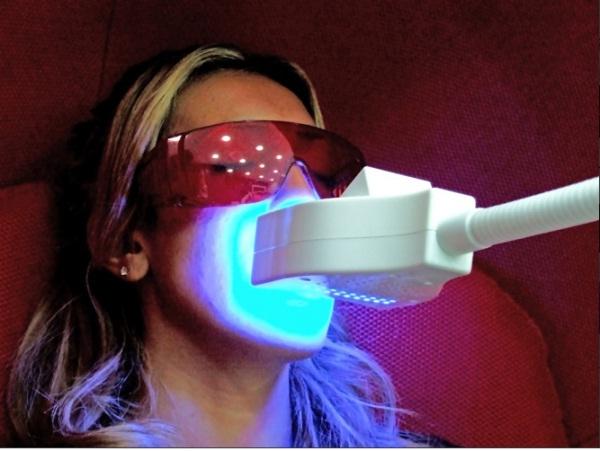 technique de blanchiment des dents au laser